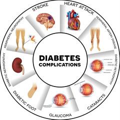 Diabetul de tip 2: Ce este? Simptome & Cauze | adidasi-haine-online.ro