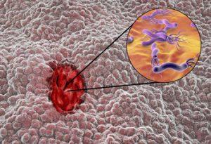 Mucoasa gastrică cu ulcer gastro-duodenal și Helicobacter pylori (ilustrație 3D)