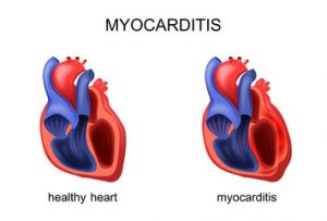 Miocardită