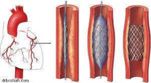 stent coronarian