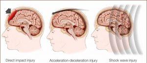 ulcerul vascular periferic tromboflebita cerebrala
