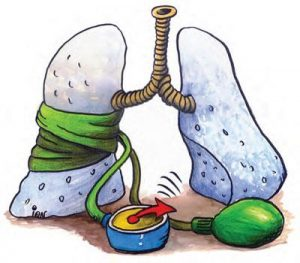 scăderea în greutate ajută la hipertensiunea pulmonară