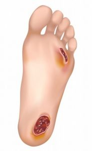 Infecțiile cutanate -  Fasceita necrozantă