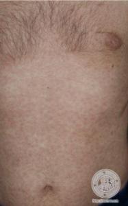Aspect rozeola cutanata in sifilis