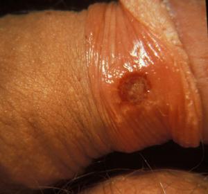 pierderea în greutate a sifilisului)