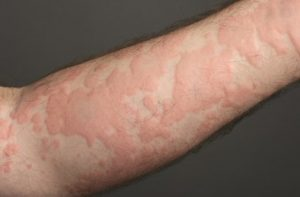 Reactiile adverse cutanate - Urticaria - aspect clinic