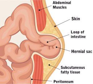Hernia ștrangulată - Conținutul unei hernii