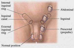 Tumorile testiculare - Reprezentare a pozitiei testicului ectopic pe traiectul de coborare