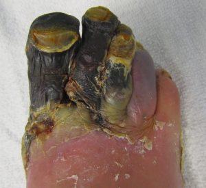 Infecțiile cutanate - gangrena gazoasă