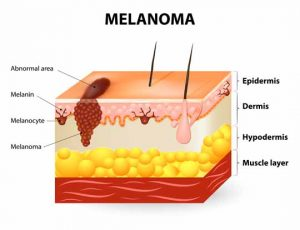 Melanomul malign: diagnostic, tratament - NewsMed ro
