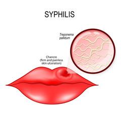 Reprezentare grafica a sancrului sifilitic la nivel oral