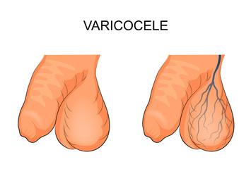 hemoroizi și varicoseg