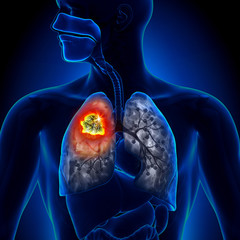 cancerul bronsic simptome)