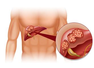 cancerul hepatic se transmite