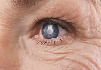 vedere slabă în diagnosticul la distanță hipermetropie ce dioptrii