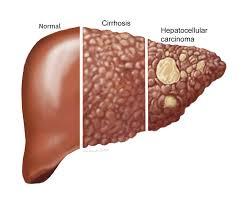 Metastaza colon