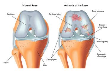 gel diclac pentru dureri articulare