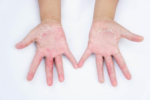 Dermatita de contact iritativă