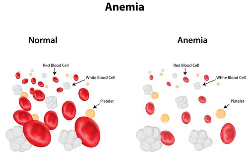 anemie tipuri)