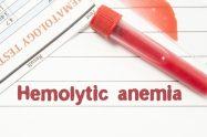 Anemia hemolitică