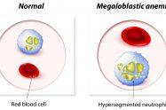 Anemia megaloblastică sau anemia prin deficit de vitamina b 12 si acid folic