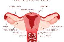 Candidoza Vaginala