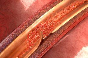 Disecția de aortă