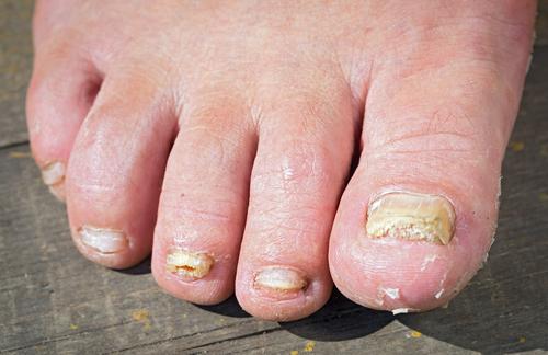 Infectie cuticule tratament