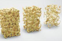 Osteoporoza-Boala oaselor fragile