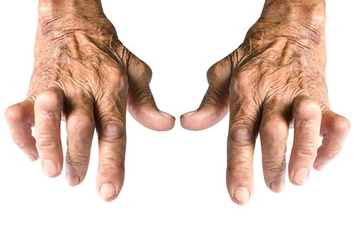 artrita reumatoidă a mâinii primele simptome)