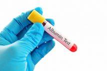Albumina umană