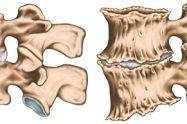 Artroza (Osteoartrita)