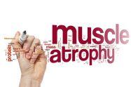 Atrofia musculară spinală (AMS)