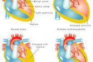 Hipertrofia cardiacă