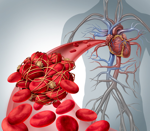 Importanța anticoagulantului in fibrilația atrială