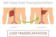 Transplantul hepatic