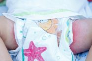 Dermatita de scutec la copil