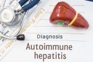 Hepatita autoimună