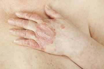 simptomele și tratamentul artrozei psoriazice Artrita Tratamentul artritei