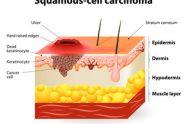 Carcinom bazocelular