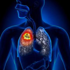 cancer la plamani