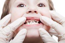 prevenirea cariilor dentare