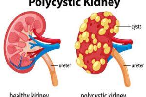 Boala polichistică renală