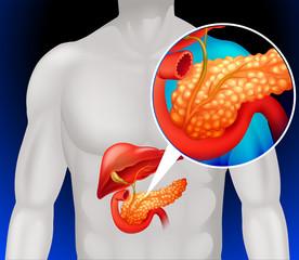 que es papiloma intraquistico cel mai bun kit de detoxifiere a colonului