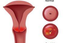 Cervicita - inflamatia colului uterin