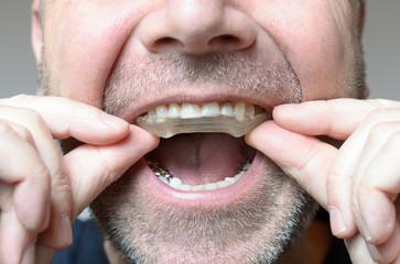 Gutiera dentară