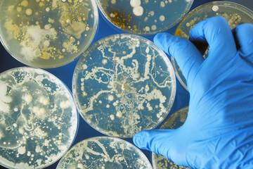 infectii fungice