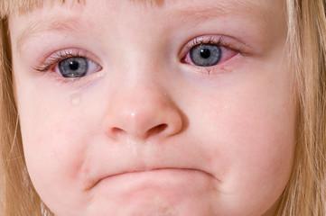 Conjunctivita simptome