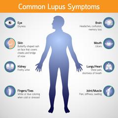 Simptome in lupus eritematos sitemic