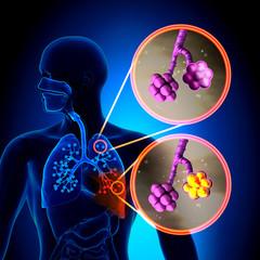 pneumonie bazala de lob stang